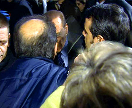 Berlusconi'nin burnunu kırdılar! galerisi resim 1