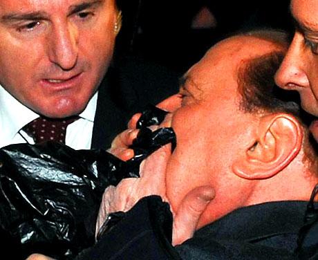 Berlusconi'nin burnunu kırdılar! galerisi resim 4