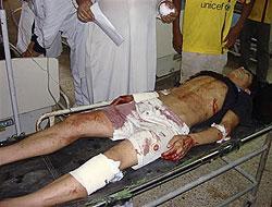 Kuzey Irak kana bulandı