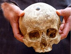 Diyarbakır'da bulunan kemikler ile ilgili rapor açıklandı