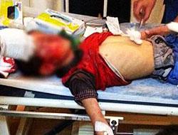 Başına gaz bombası isabet eden çocuğun durumu kritik!