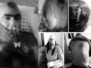 Konya'da Kürt aileye ırkçı saldırı: Yedi kişi katledildi