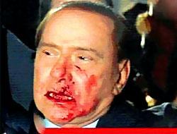 Berlusconi'nin Burnunu Kırdılar
