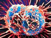 Prostat kanseri hücresini öldüren virüs!