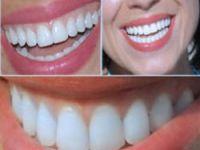 Sağlıklı diş için bunları yapın