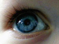 Sinsi bir hastalık: Glokom
