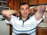 Demirbaş'ın hastalığı kollarına sıçradı