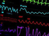 Kalp krizinin en fazla görüldüğü aylar