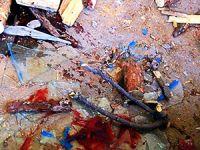 DİHA: Özel harekât timleri iki çocuk öldürdü!