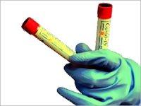 Koronavirüs salgınında İstanbul uyarısı